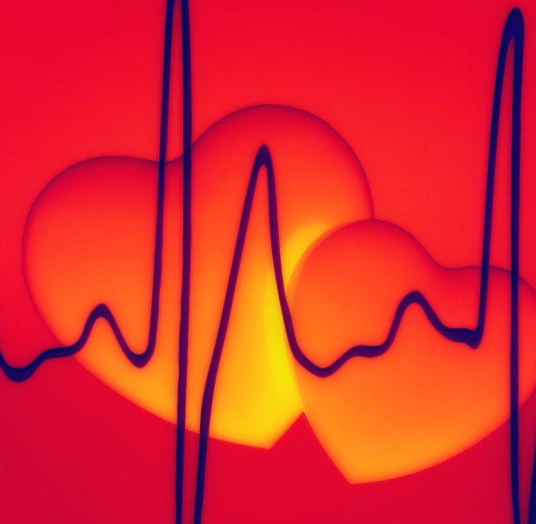 Już po EKG, a jeszcze przed wizytą u kardiologa