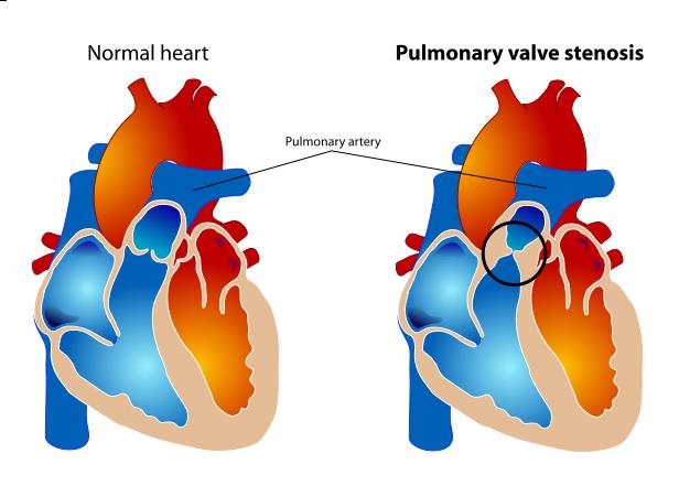 zwężenie zastawki pnia tętnicy płucnej