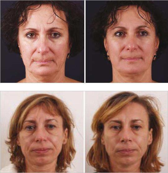 efekty zabiegow liftingujacych na twarz