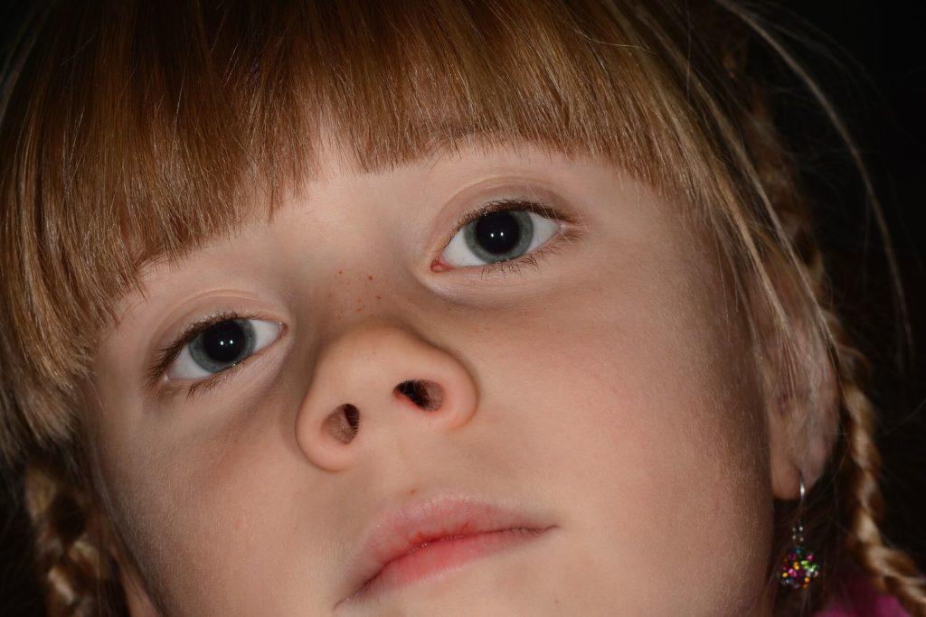 Rodzynka w nosie dziecka. Jak usunąć ciało obce z noska?